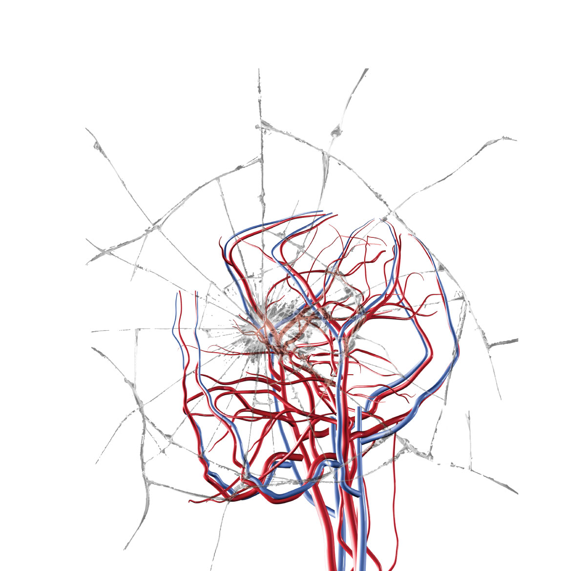 Stroke vs. Aneurysm: Treatment Options