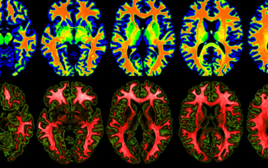Small vessel disease poorly understood but advanced magnetic resonance imaging scans can help